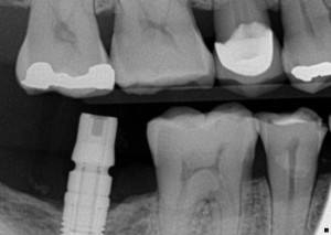 Implant Bitewing Xray