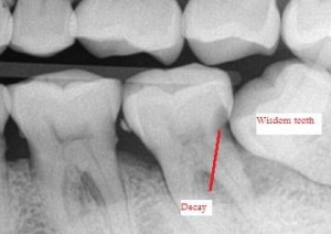 Xray Image of Impacted Wisdom Tooth Causing Dental Decay, Pull Wisdom Tooth extraction, Pull Third Molar, Wisdom Teeth extraction