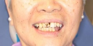 Complete Smile Makeover Before Photo