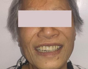 Front Dental Bridge Post-Treatment Cosmetic Dentistry
