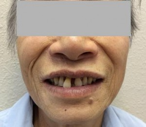Frontal Dental Bridge Pre-Treatment Cosmetic Dentistry