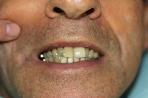 Front Tooth Restored with Dental Implant