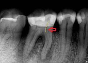 Dental Endoperio Infectious Lesions Due to Vertical Fracture shown