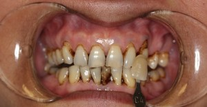 Pre Whitening and Pre Dental Cleaning Photos