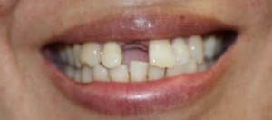 Preop Implant Front Tooth
