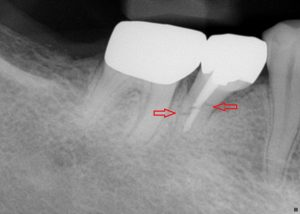 Xray Image shows root fracture.