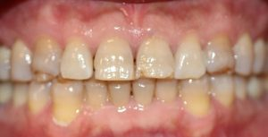 Before Treatment for Crowns