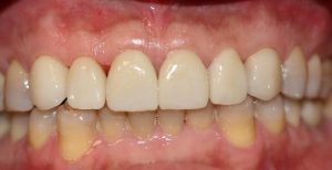 Cosmetic Dental Crowns, smile makeover