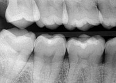 Dental Calculus Removed on Xray Radiograph Image