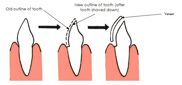 Front Tooth Diagram Block And Schematic Diagrams