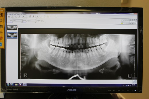 Digital Panoramic Xray Radiograph